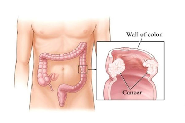 Colorectal Oncology