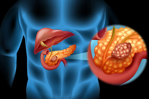 Pancreas Oncology
