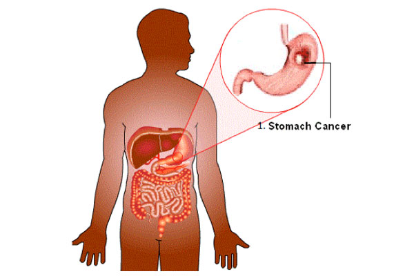 Stomach Oncology