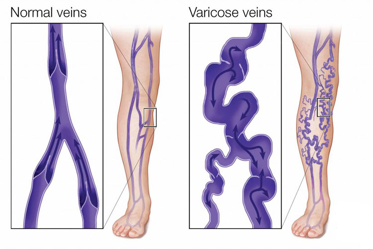 Vericose Vein Treatment,Rainbow Hospital,Kolhapur